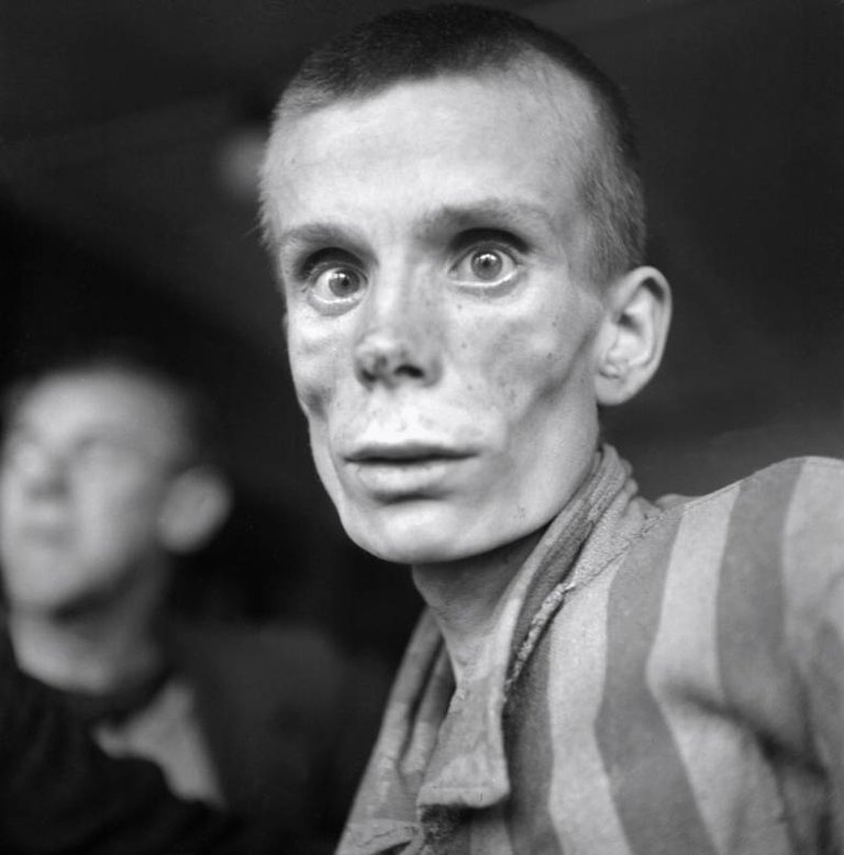An 18-year-old Russian prisoner of Dachau concentration camp not long after its liberation by U.S. forces on April 29, 1945..jpg